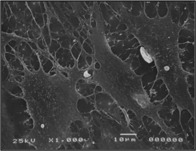 Bandscheibenzellen